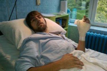 ФОЧА: Реплантациони тим др Ерића спасио младићу ампутирану шаку